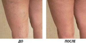 Лазерное удаление кровеносных сосудов на ногах